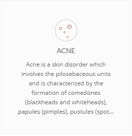 Acne banner