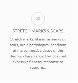 Stretch marks & scars banner